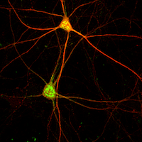 mouse cortical parvalbumin-positive fast-spiking interneuron